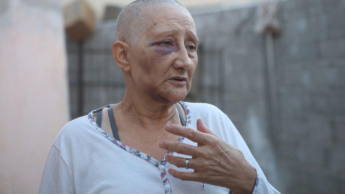 La mujer fue asistida en una clínica privada. No tiene fracturas pero sí hematomas en distintas partes del cuerpo.