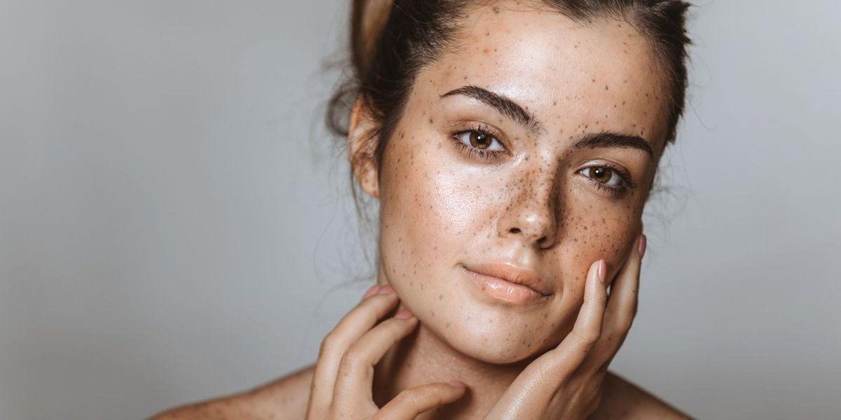 Amar tu piel con imperfecciones