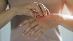 Esta es una enfermedad inflamatoria y crónica de la piel, caracterizada por brotes frecuentes, picazón intensa, irritación, dolor, enrojecimiento, costras e infecciones.