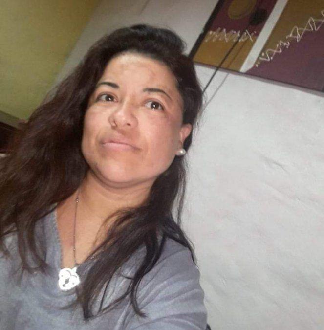 Joven madre perdió la vida en un trágico accidente  en cercanías a Los Zorros